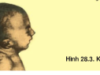 Bài 1, 2, 3, 4, 5 trang 115 SGK Sinh học 12 Nâng cao – Trình bày một số bệnh di truyền do đột biến gen gây nên, nêu nguyên nhân chung của các bệnh này.